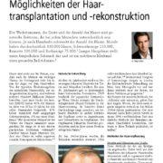 Möglichkeiten der Haartransplantation- und rekonstruktion